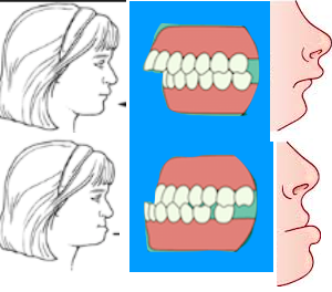 Malocclusioni dentali