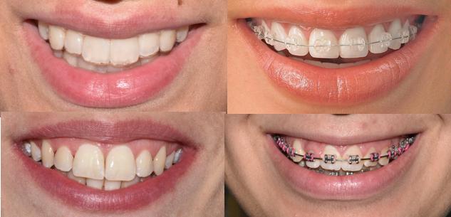 Ortodonzia - sempre più invisibile