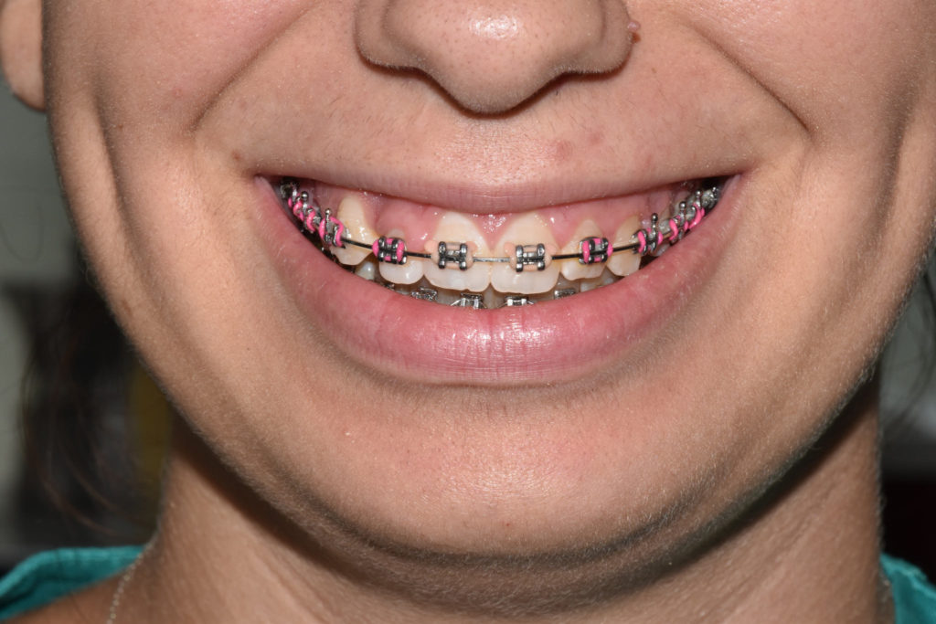 Ortodonzia vestibolare metallica
