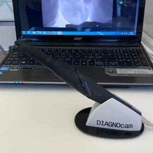 Diagnosticare le carie senza raggi-x
