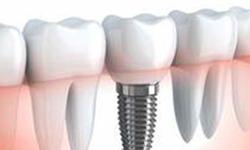 Protesi e chirurgia orale