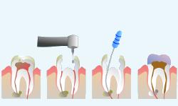 Prevenzione, cura, eliminazione della carie; Endodonzia
