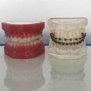 Ortodonzia: sempre più invisibile