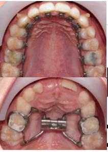 Età vs tipi di ortodonzia