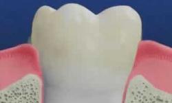 Patologie orale